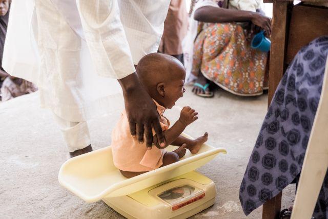 Nigria malnutrition enfant