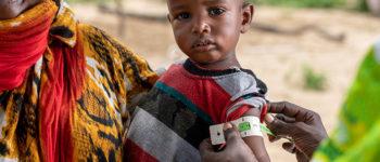 enfant malnourri tchad